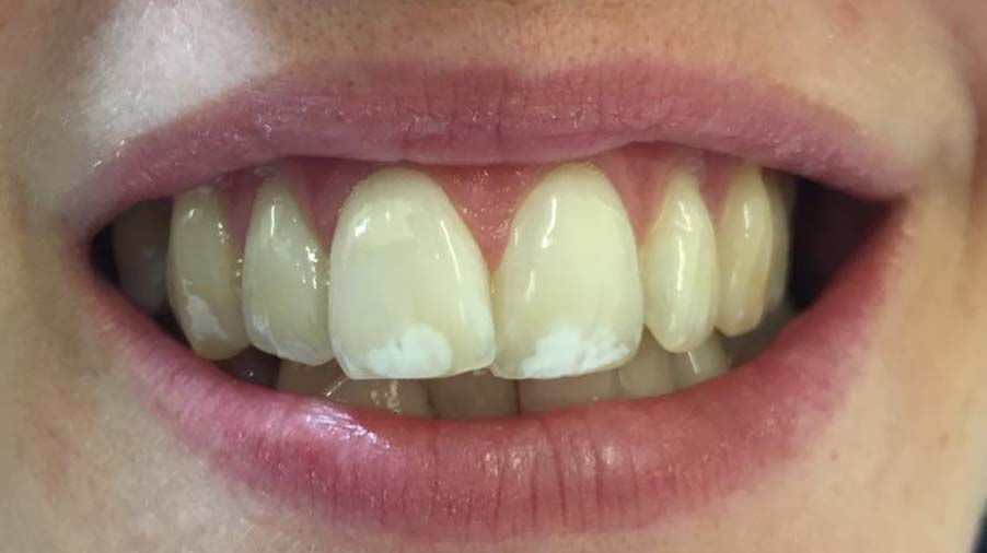 market-weighton-dental-services-tooth-whitening-before-01