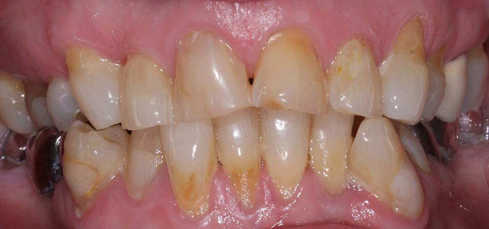 market-weighton-dental-services-tooth-whitening-before-02